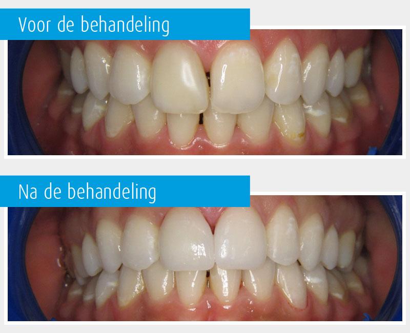 Marina-Clinic-behandeling-Facings-casus-1