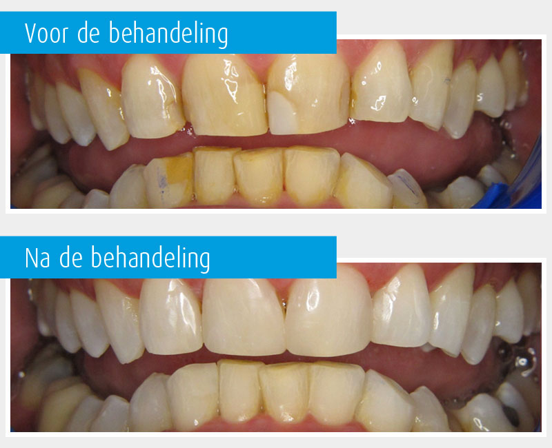 Marina-Clinic-behandeling-Facings-casus-2