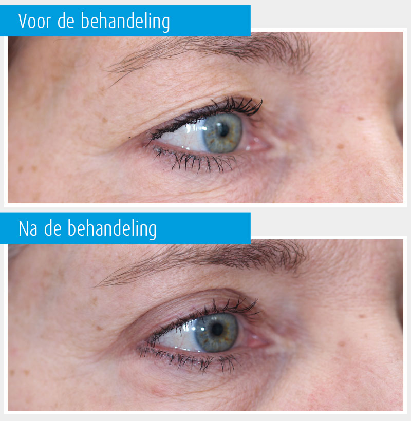 Marina-Clinic-behandeling-ooglidcorrectie-casus-1