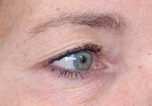ooglidcorrectie voor