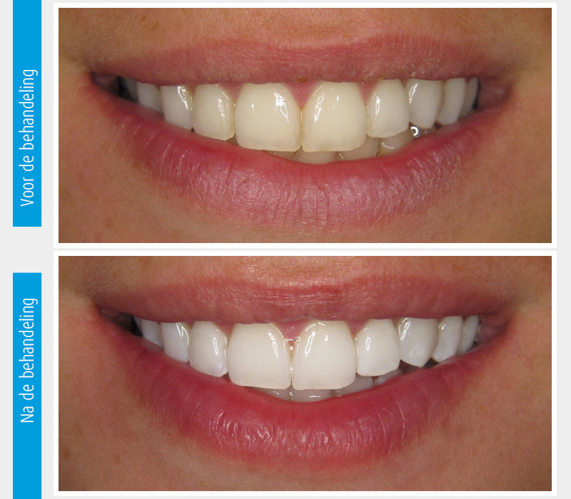 Marina Clinic tanden bleken casus 1