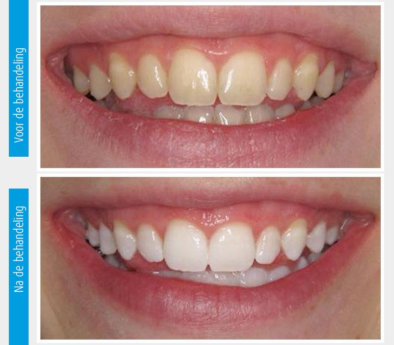 Marina Clinic tanden bleken casus 2