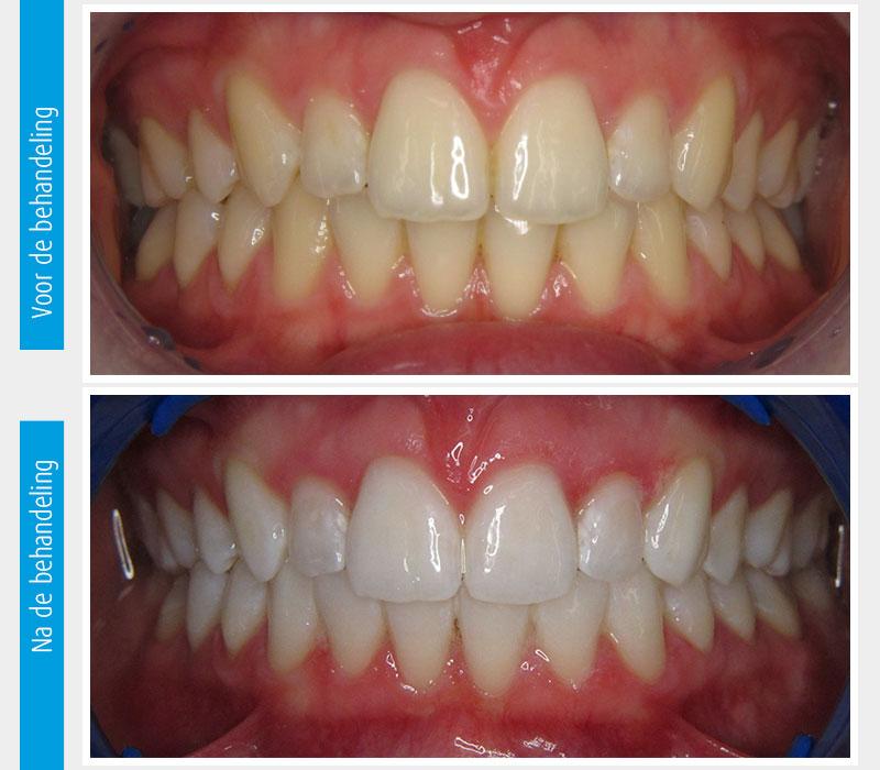 Marina Clinic tanden bleken casus 3
