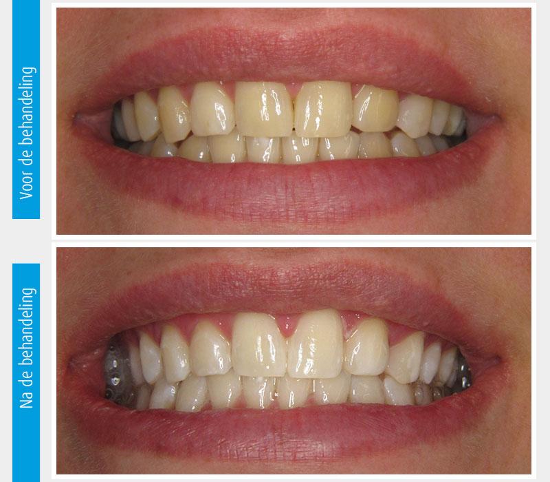 Marina Clinic tanden bleken casus 4
