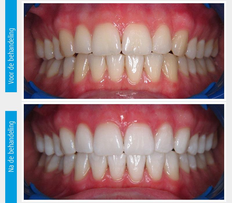 Marina Clinic tanden bleken casus 5