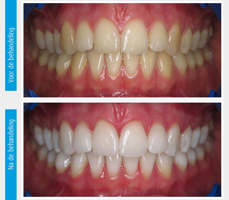 Marina Clinic tanden bleken casus 6