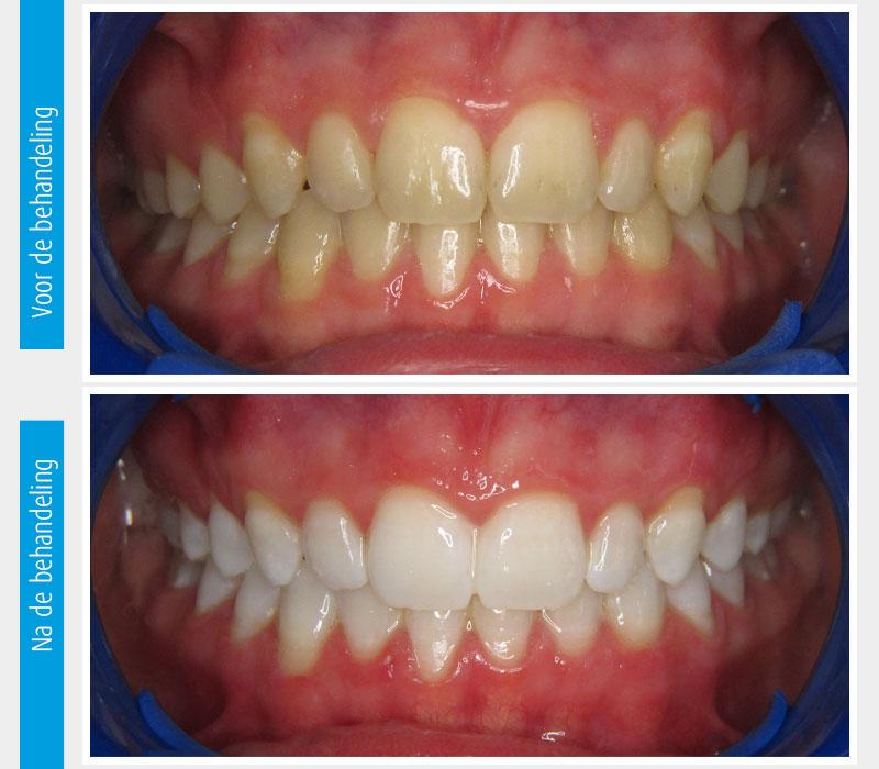Marina Clinic tanden bleken casus 7