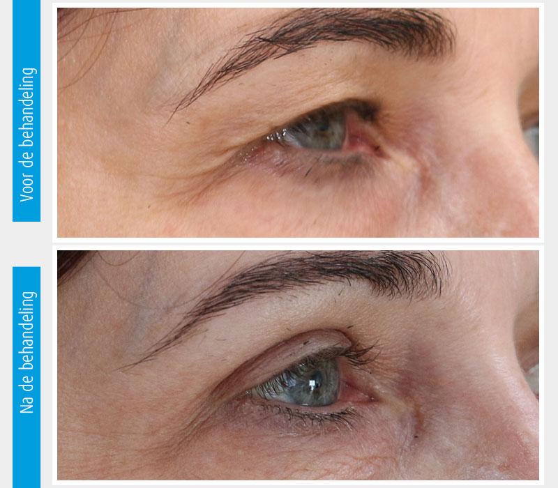 Marina-Clinic-behandeling-ooglidcorrectie-casus-2