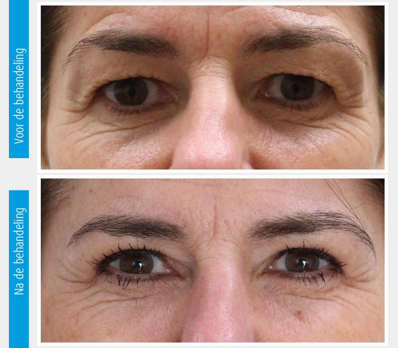 Marina-Clinic-behandeling-ooglidcorrectie-casus-3