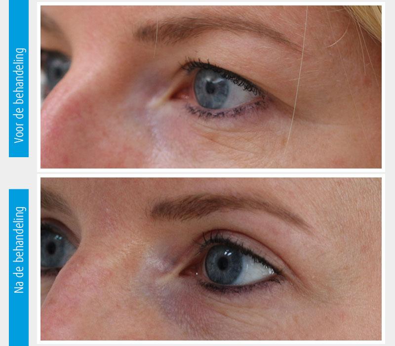 Marina-Clinic-behandeling-ooglidcorrectie-casus-4